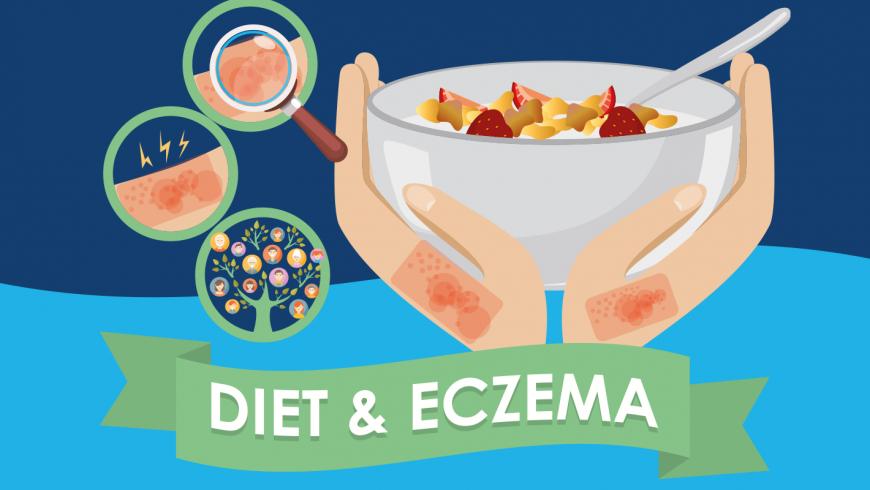 Diet's role in helping Eczema!