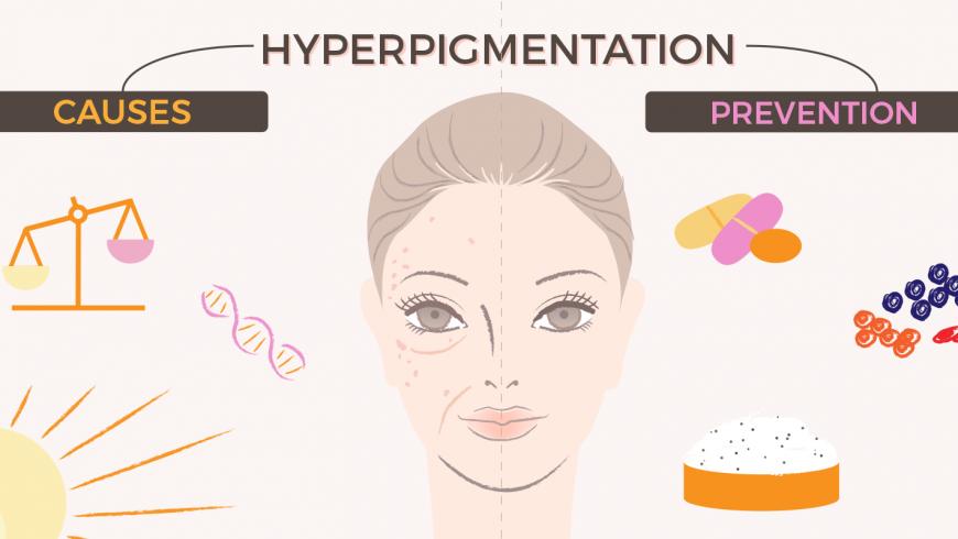 Hyperpigmentation: Causes & Prevention!